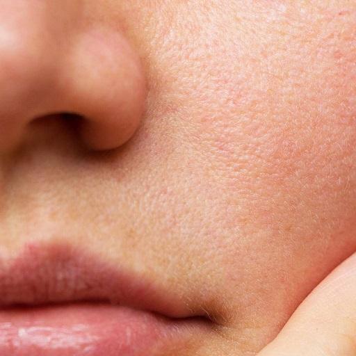 استفاده از لسیتین برای سلامت پوست